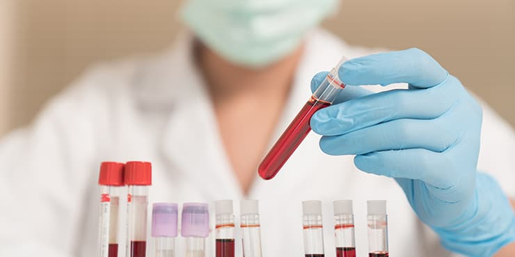 blood-test-740x370